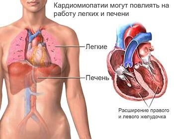 Гипертрофическая кардиомиопатия симптомы и признаки Гипертрофическая кардиомиопатия лечение