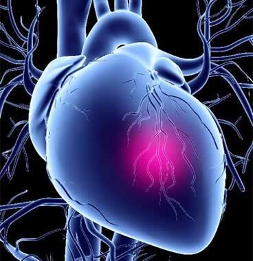 Отек лёгкого при инфаркте миокарда
