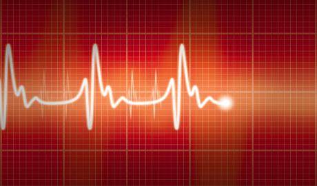 Что показывает ЭКГ сердца по зубцам кардиограммы?